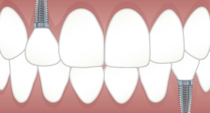 Porady, Implanty zębów trzeba wiedzieć - zdjęcie, fotografia