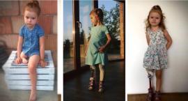 Amerykański ortopeda może zoperować Maję – potrzeba 400 tys. zł!