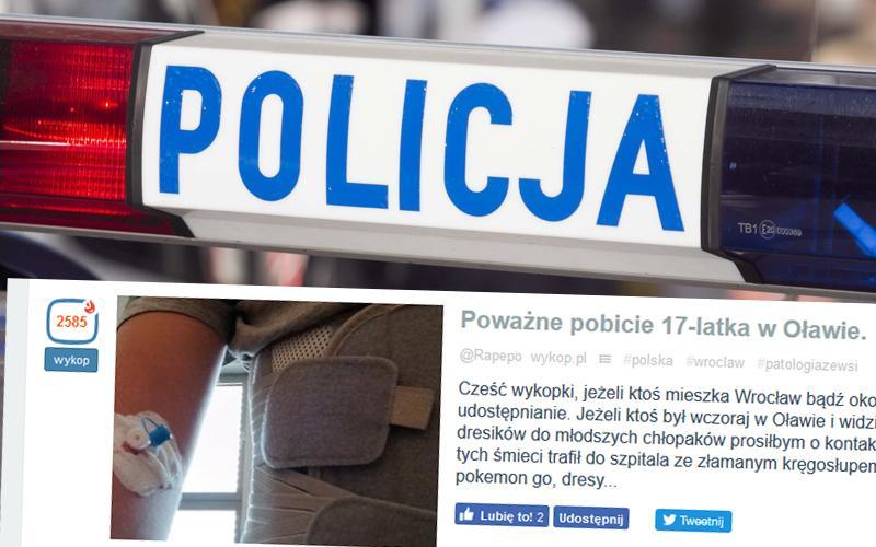 Kronika policyjna, Młody mieszkaniec ciężko pobity Policja szuka sprawców - zdjęcie, fotografia