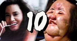 TOP 10: Operacje plastyczne, które zakończyły się katastrofą. DRASTYCZNE SCENY!