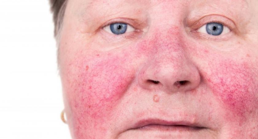 Artykuł sponsorowany, Trądzik różowaty przyczyny leczeni objawy Dermokosmetyki Acnerose - zdjęcie, fotografia