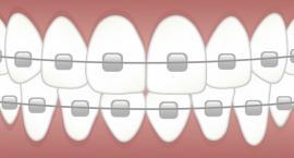 Zakładanie aparatu ortodontycznego krok po kroku
