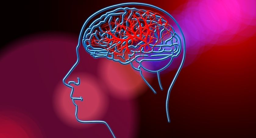 Styl życia, Dziś zwracamy uwagę problem udaru mózgu - zdjęcie, fotografia
