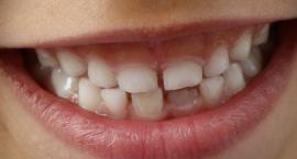 """W ramach akcji """"Dziel się Uśmiechem"""" uczniowie z podlaskich szkół nauczą się dbać o zęby"""