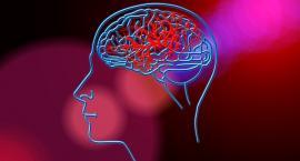 Dziś zwracamy uwagę na problem udaru mózgu