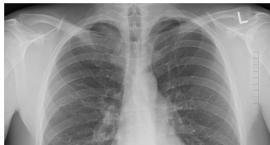 Bezpłatne badania pulmonologiczne