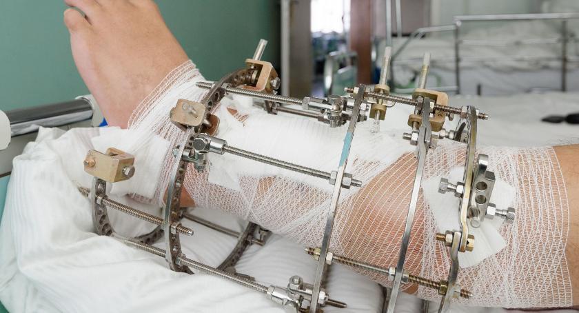 Informacje, Modernizacja Oddziału Ortopedyczno Urazowego - zdjęcie, fotografia