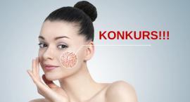 !!!Wygraj voucher na zabieg laserowego zamykania naczynek twarzy!!!