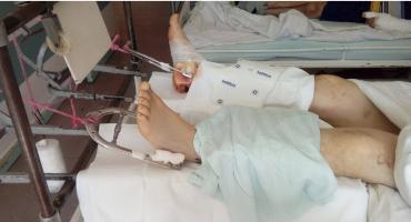 Więzienie za połamane koparką nogi