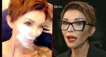 Ewa Minge wyznała prawdę o swoim wyglądzie: Nie unikam medycyny estetycznej