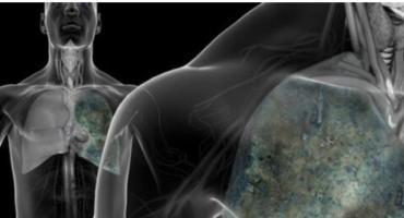 Rak płuc – BEZPŁATNE BADANIA